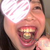 "[Individual photography] ""*Fat"" Tarumusume's silver tooth-rich tooth strength check"