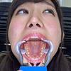 【Tooth fetish】 We observed Aika's teeth!